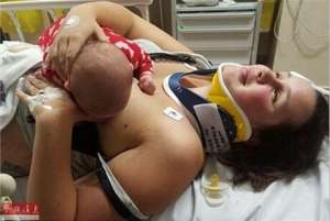 女子车祸重伤为给孩子喂奶拒用止痛药 忍痛4小时