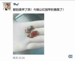 19岁女孩两节手指被瞬间拽断! 罪魁祸首竟是美甲