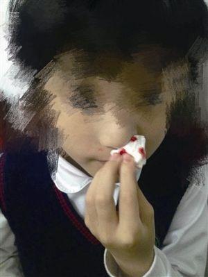 浙江一小学疑橡胶跑道有毒 多名学生流鼻血发烧