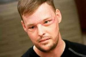 美国男子吞枪毁脸 成功移植新脸第二次生命会更加珍惜