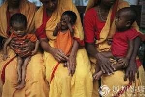 联合国说饥荒导致百余万儿童严重营养不良