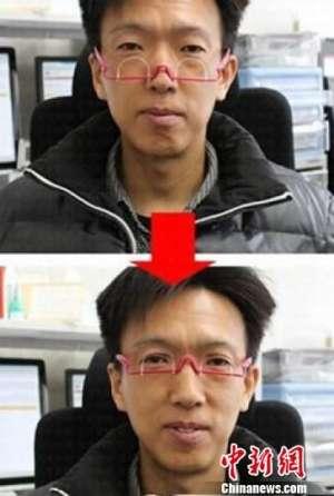 """""""双眼皮眼镜""""受热捧 医生称配戴不慎损伤眼皮(图)"""