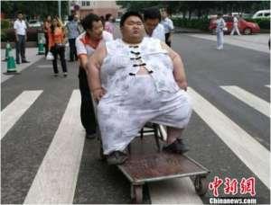 """""""中国第一胖""""男子就医 一年减肥81公斤(组图)"""