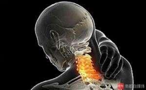 中山14岁男孩长时间玩手机,颈椎退化如40岁中年人!