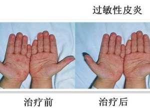 湖南花垣县147名小学生尿汞超标 1名嫌犯被控制
