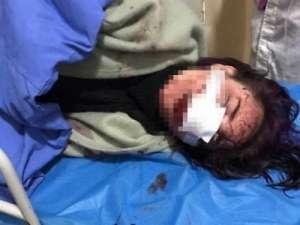 丽江通报-女子遭暴打-事件-6名嫌疑人被依法逮捕