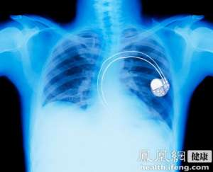 肺结核在北京呈高发势头 近半是流动人口患者