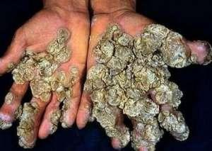 男孩身上长珊瑚 又痒又痛还散发刺激性气味