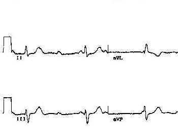 心律不齐早搏的影响,要引起重视