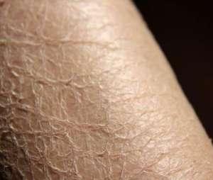 皮肤干燥鱼鳞状怎么治?用这个来拯救你的皮肤