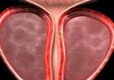 缓解前列腺增生的方法有哪些