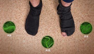 灰指甲早期症状有哪些?可要记清楚了