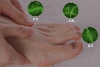 脚拇指得了灰指甲怎么办?这个方法就不错,一同来看