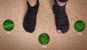 亮甲泡脚粉治脚气吗?找对治疗方法很关键