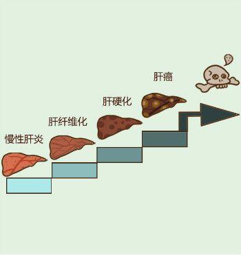 肝纤维化的原因有哪些?防止肝纤维化吃什么好?为了健康您了解一下!