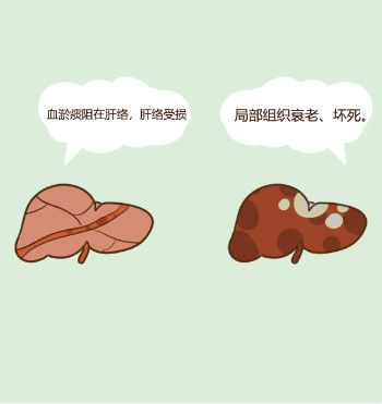 肝纤维化来势汹汹!早期肝纤维化如何发现?肝纤维化要做哪些检查?