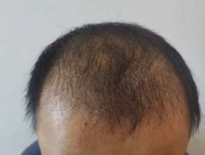 如何防脱发及生发?教你一招,告别秃顶!